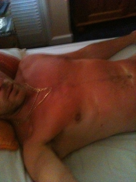 Do you think I've caught the sun over the last few days?!   #slightlyredwithwhitemarks