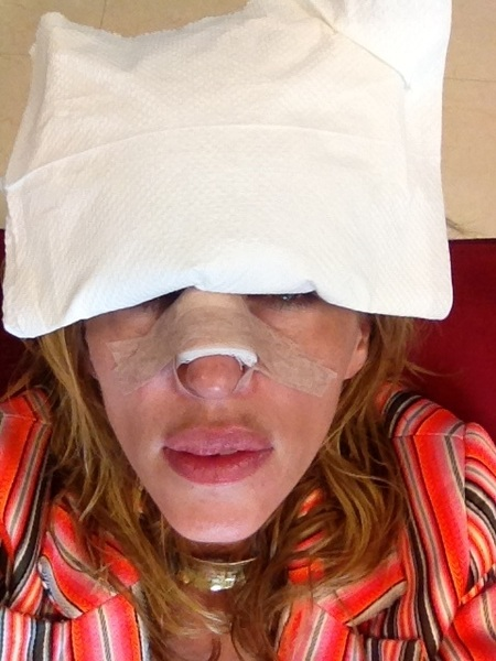 Fucked up her nose..!! @mzmartincoyne parties toooooooo hard in Mexico!!
